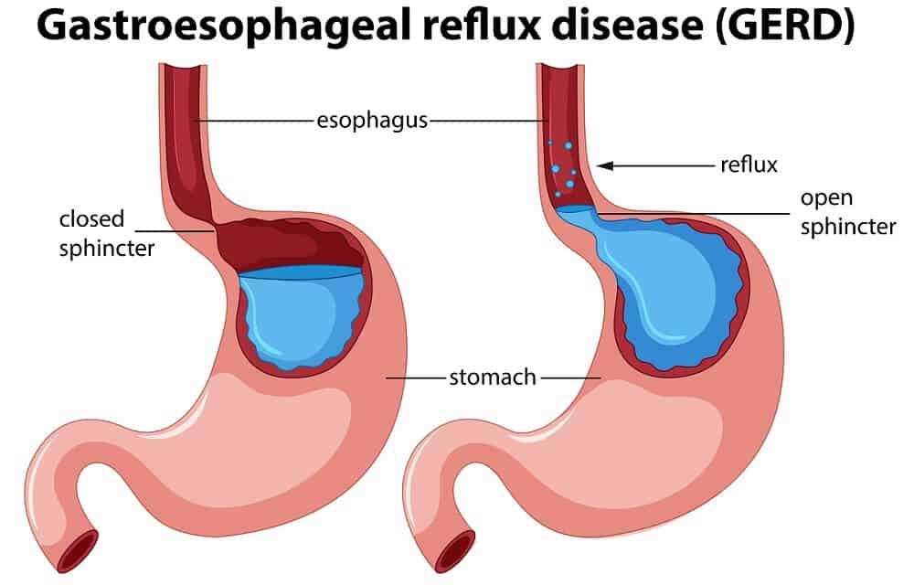 vector gastroesophageal or acid reflux disease anatomy